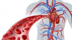 혈관질환, 운동으로 예방할 수 있다?