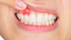 잇몸병! 치주염에 도움되는 음식은?