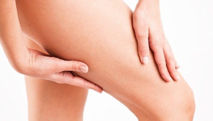 난 왜 유독 허벅지에 살이 찔까?