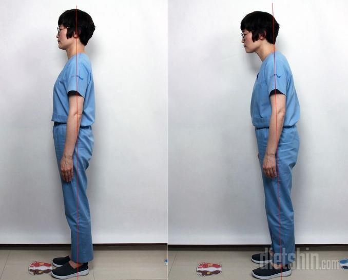 사진으로 알아보는 안면비대칭 진단법!