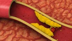 혈액 속 지방없애려면, 먹어야 하는 음식!