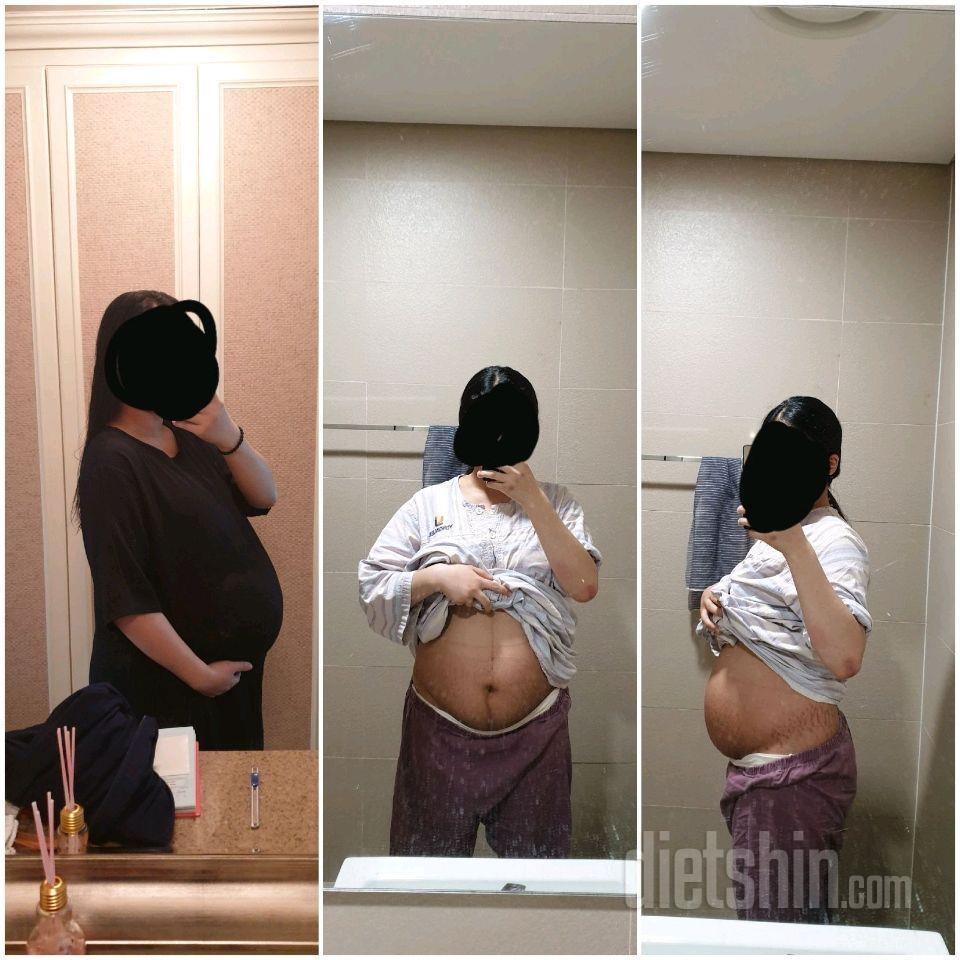 만삭에서 산후 8개월 -29kg 중간점검