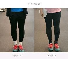 미세한 다리변화