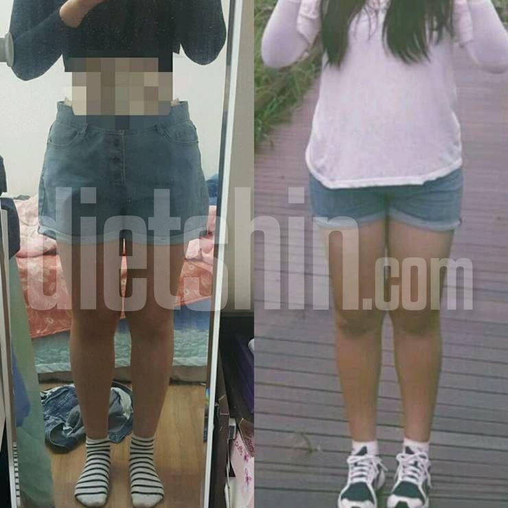 비만녀에서 15kg 감량후 굴욕없는 몸매로!