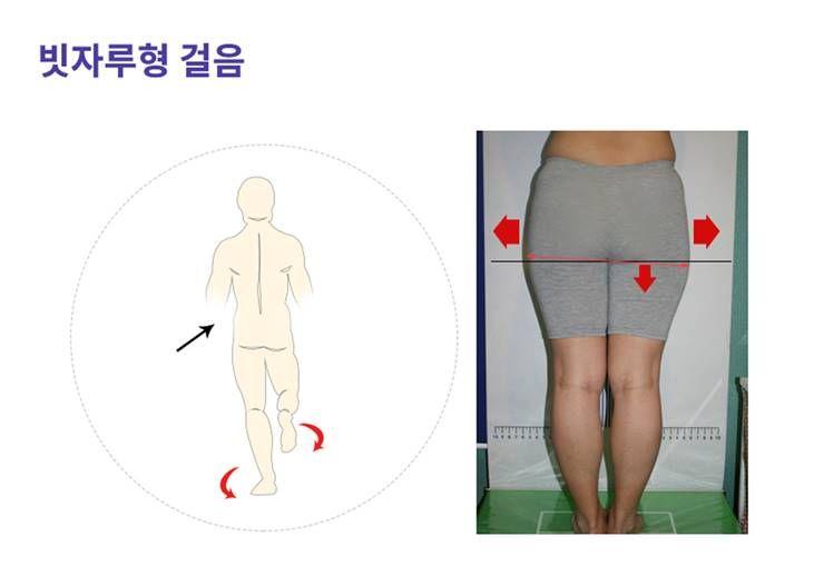 걸음걸이에 따라 하체라인이 달라진다?