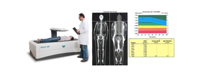 단순 체중과 비만도(BMI)의 함정?!