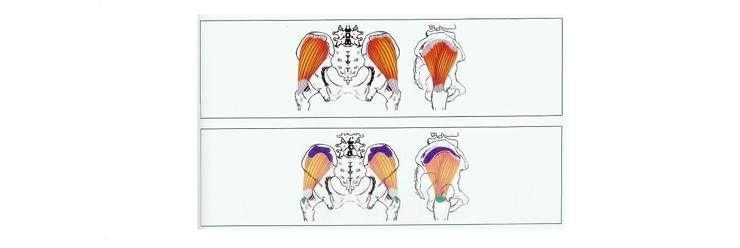허리 아플 때 풀어줘야 하는 근육, 중둔근!