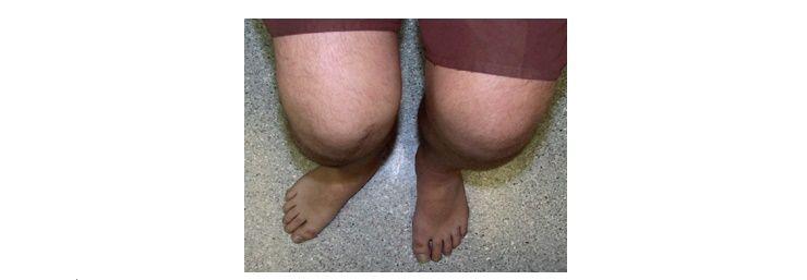 무릎이 아픈 당신을 위한 팁!