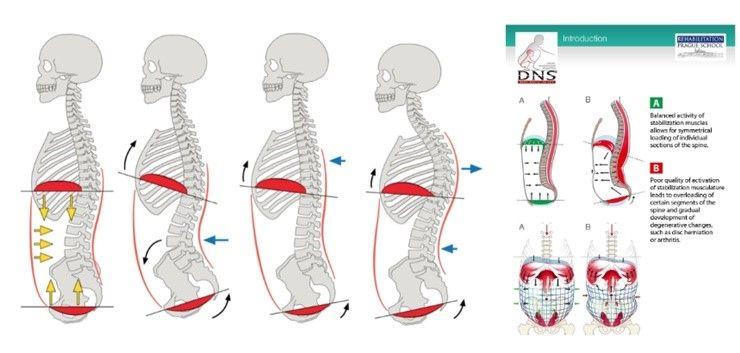 골반통증 없애려면, 코어근육을 길러라?